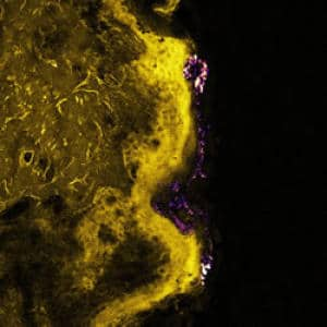 Scientists Use Laser Imaging to Assess Safety of Zinc Oxide Nanoparticles in Sunscreen